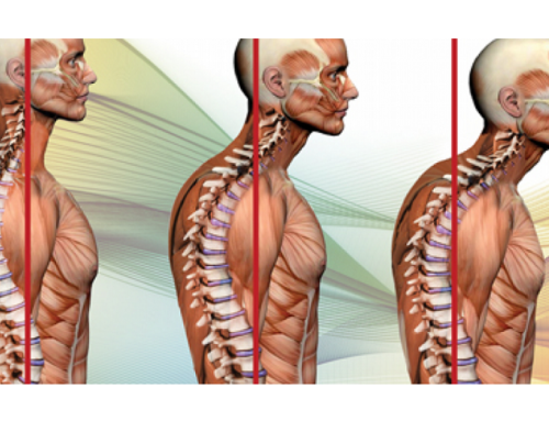 What is the Hump at the Back of Your Neck?