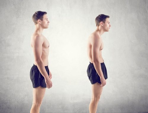 Posture Correction – How To Fix Bad Posture